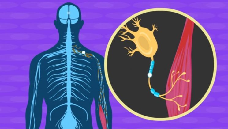 Illustratives Bild des neurologischen Prozesses der Amyotrophe Lateralsklerose (ALS) auch bekannt als Lou Gehrig-Krankheit verursacht. Foto Screenshot Moovly über YouTube